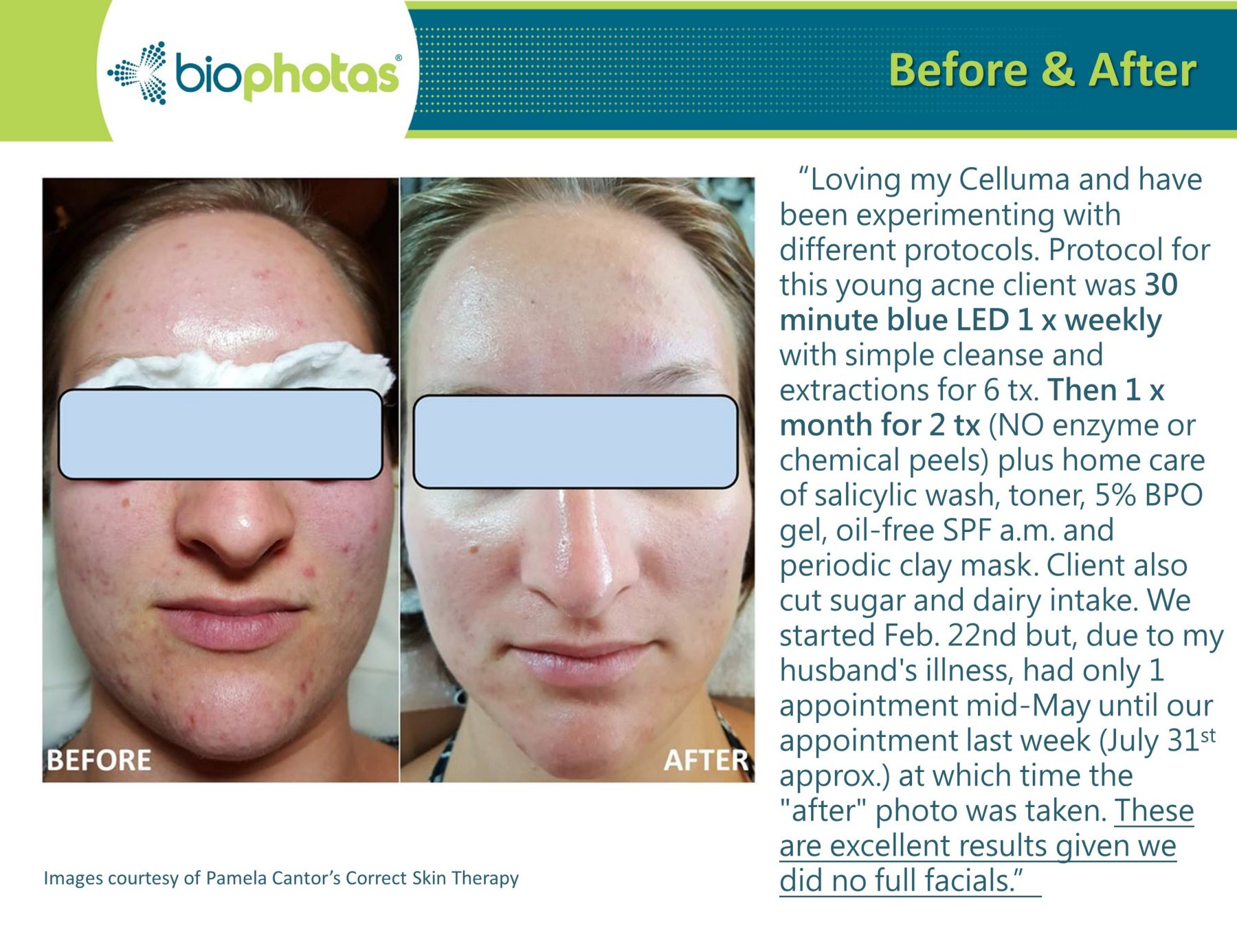 celluma light therapy before and after