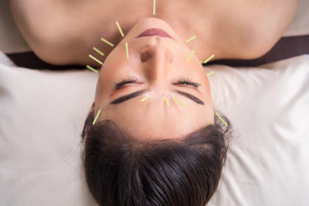 cosmetic acupuncture in reading