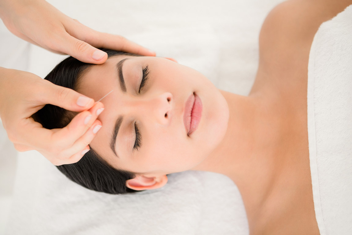Cosmetic acupuncture treatment in Reading, Berkshire