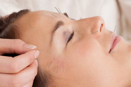 cosmetic facial acupuncture reading