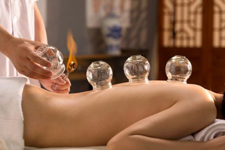 Cupping deep tissue massage in Reading, Berkshire
