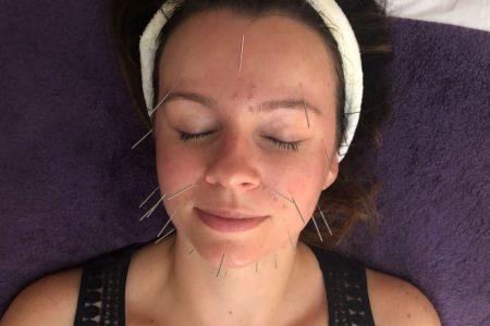 facial accupuncture caversham reading 01
