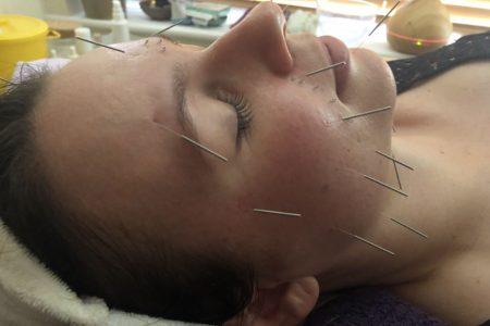 facial accupuncture caversham reading 02
