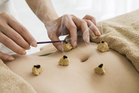 Moxibustion treatment to stimulate blood circulation